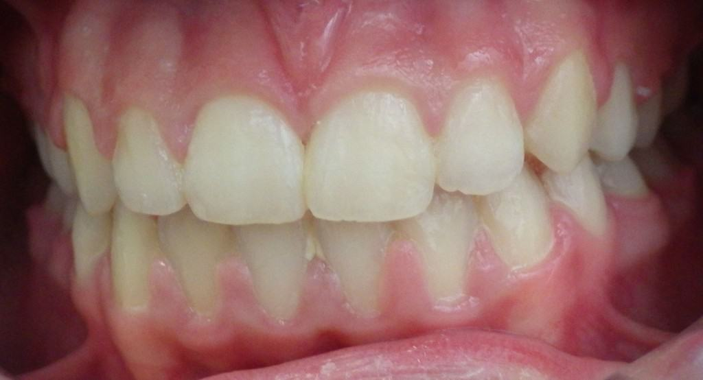 Case 11 Post Orthodontics