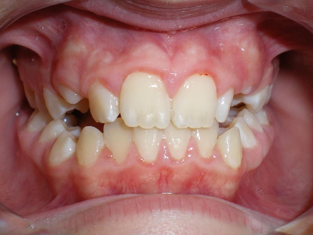 Case 13 Post Orthodontics Phase 1