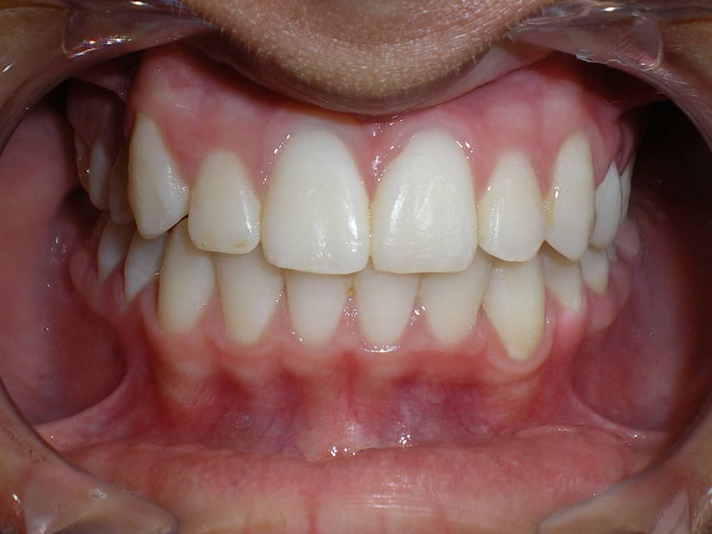 Case 14 Post Orthodontics