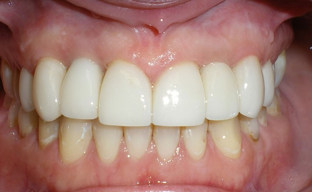 Case 4 Post Implants Crowns and Veneers