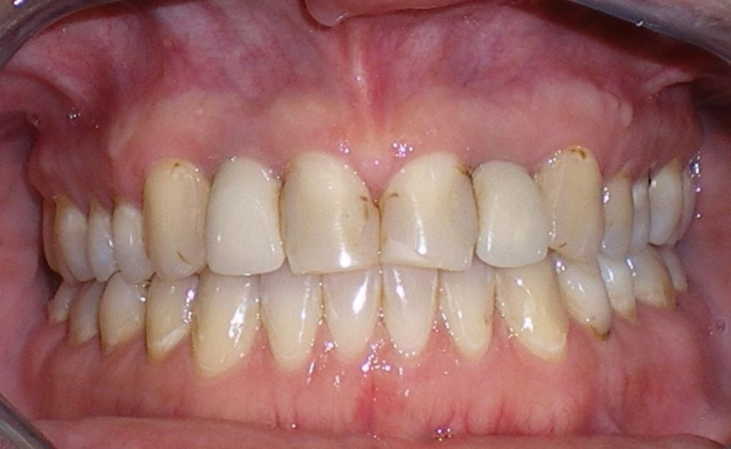 Case 4 Pre Implants Crowns and Veneers