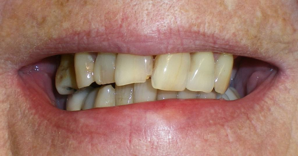 Case 5 Pre Full Upper Implant Rehabilitation