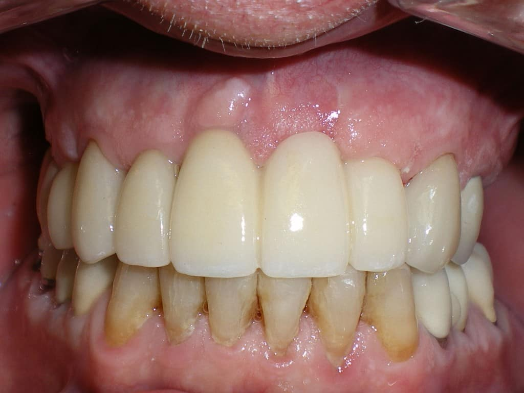 Case 6 Post Upper Implants Crowns and Veneers