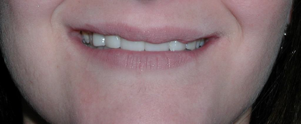 Case 7 Post-Ceramic Crowns
