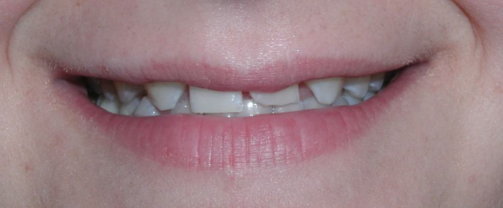 Case 7 Pre-Ceramic Crowns