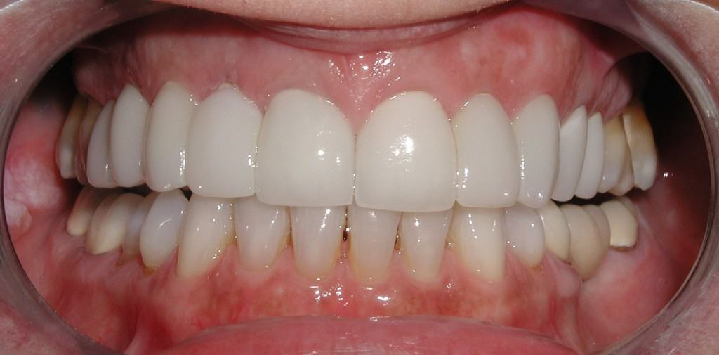 Case 8 Post Veneers and Whitening