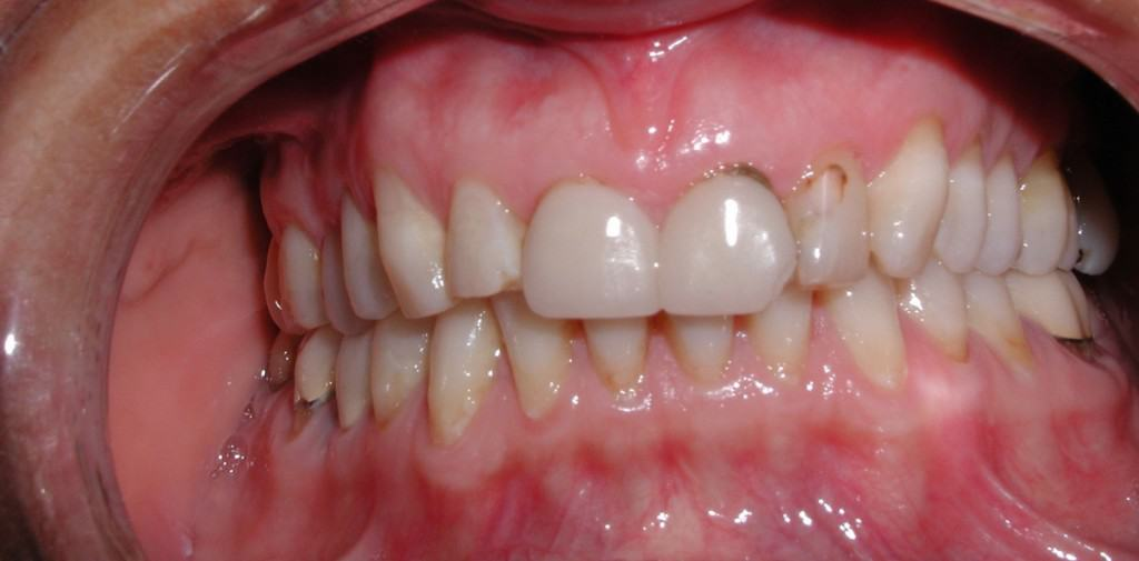 Case 8 Pre Veneers and Whitening