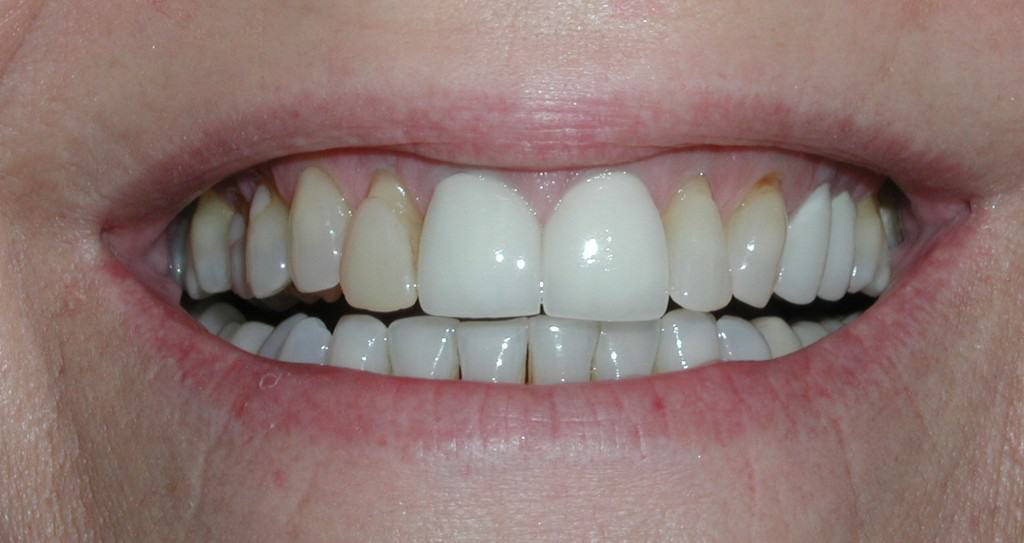 Case 9 Pre Veneers Crowns and Whitening