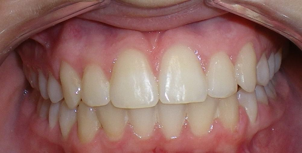 Case 10 Post Orthodontics